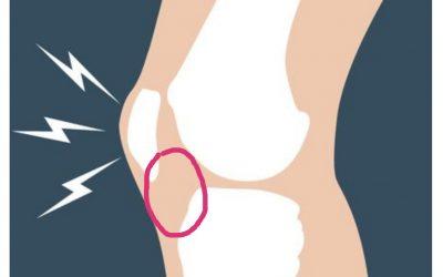 La grassa de hoffa de genoll